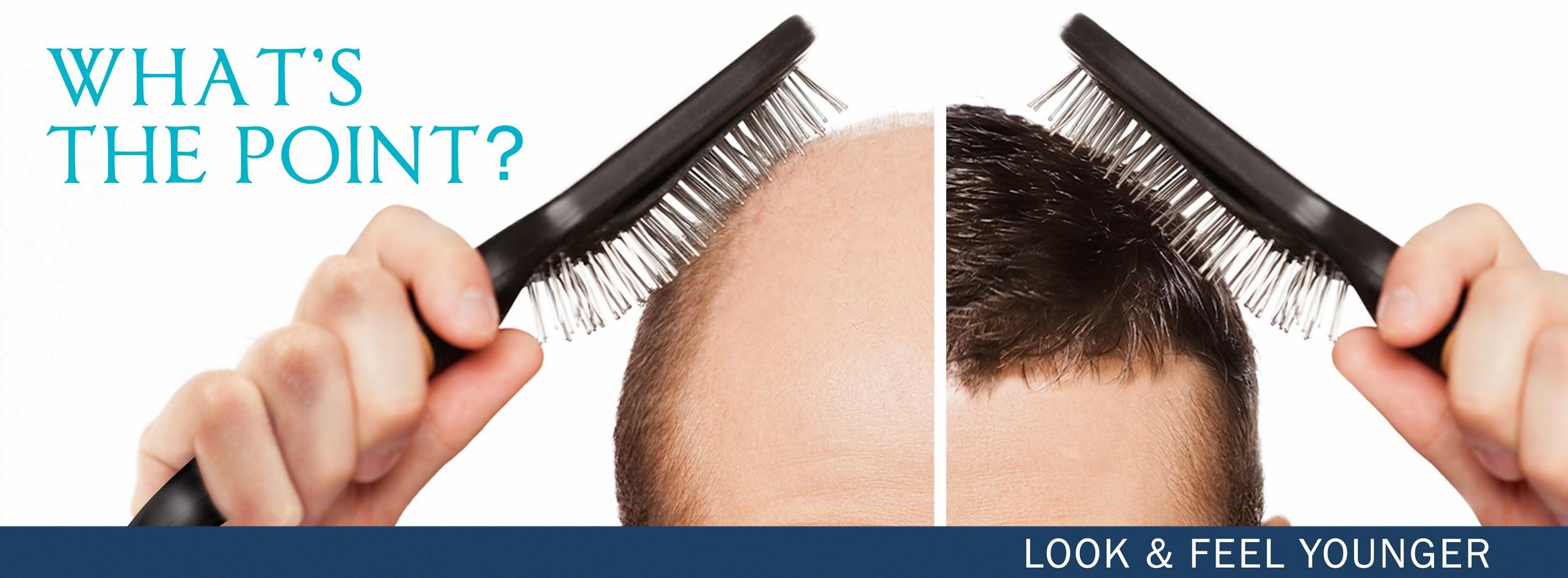 توضيحات عن زراعة الشعر في ايران ( مشهد )