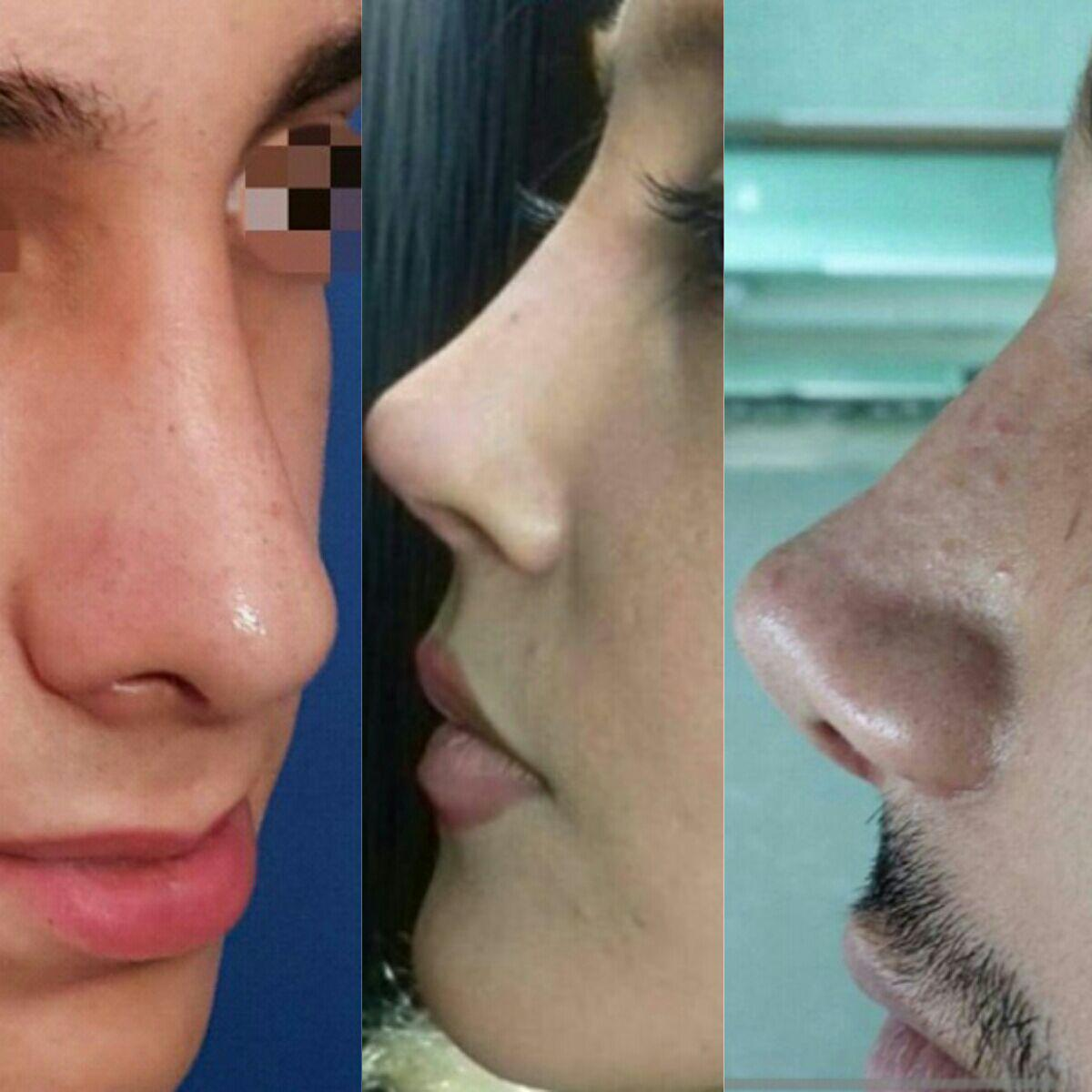 عمليه التجميل الأنف في إيران