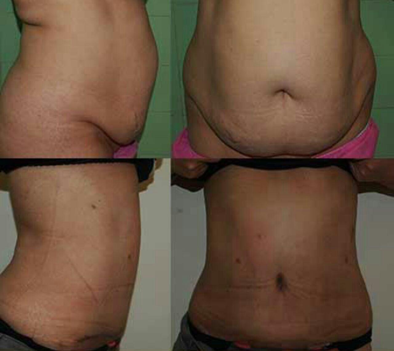 عملية التنحيف و شفط الدهون الزائده من البطن