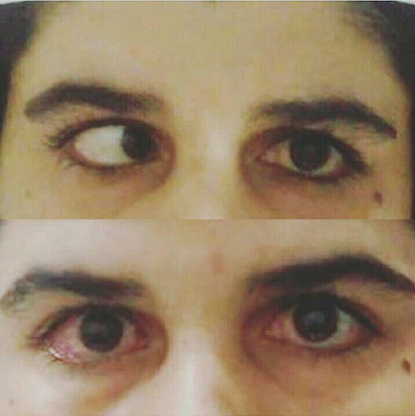 جفاف العین(Dry Eye Syndrome)
