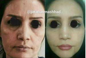 جراحی لیفت صورت دکتر علی اکبر صادقی هزینه ۶/۵میلیون