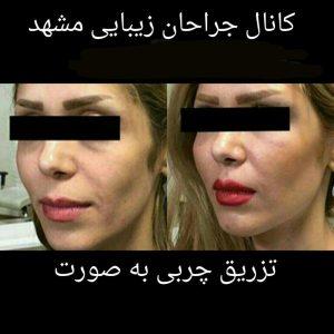 تزریق چربی به صورت دکتر احمدی هزینه یک میلیون