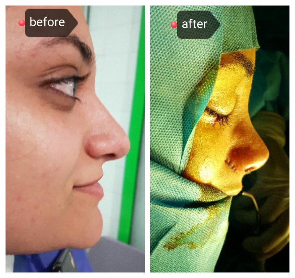 جراحی بینی عروسکی دکتر حامدی
