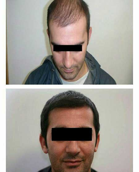 hair-implant-mashhad
