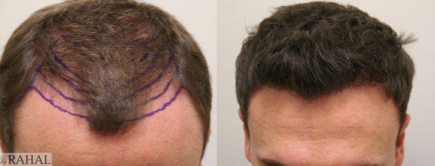 هزینه کاشت موی طبیعی چقدر است؟