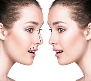 جراحی بینی-مشهد