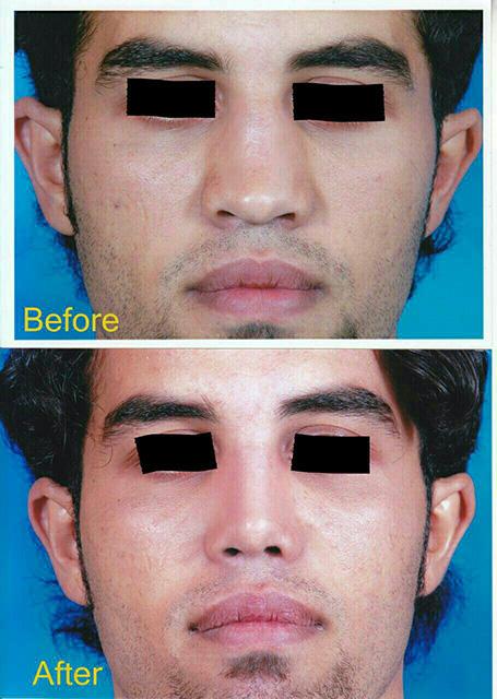 جراحی بینی گوشتی-مشهد