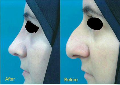 جراحی بینی استخوانی دکتر هنرور هزینه6میلیون