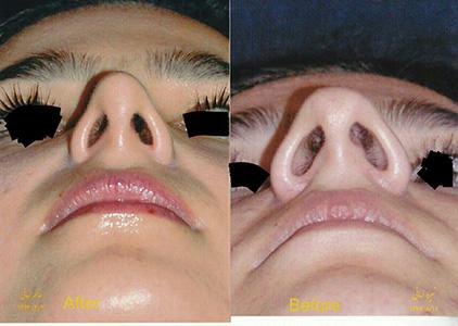 جراحی بینی استخوانی مشهد دکتر هنرور هزینه6میلیون