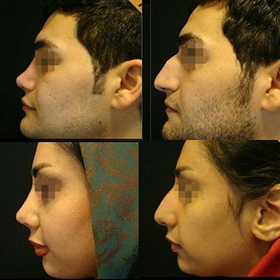 جراحی بینی دکتر پیمان سلیمی نژاد هزینه5تا6 میلیون