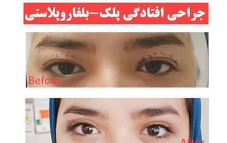 top-mashhad-Blepharoplasty
